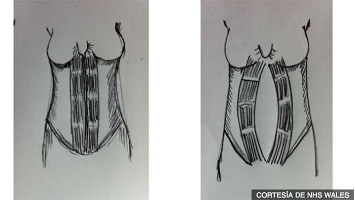 ¿Por qué cuesta tanto recuperar los músculos abdominales posparto? 1