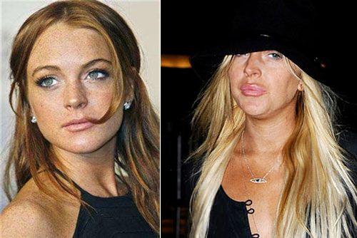 Lindsay Lohan tiene implantes mamarios